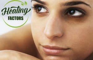 5วิธีรักษาขอบตาดำ